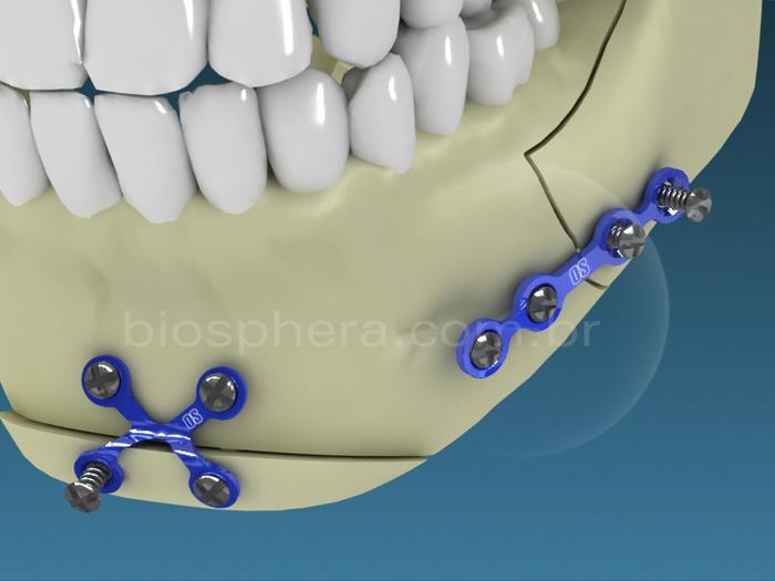 Placas para cirurgia BucoMaxilo Facial - Fixação do mento