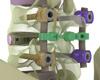 implante de fixaçao de vértebras lombares