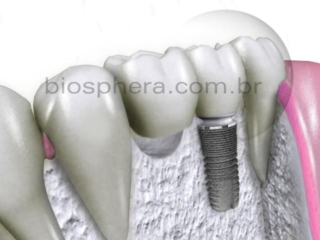 implante dentario sin