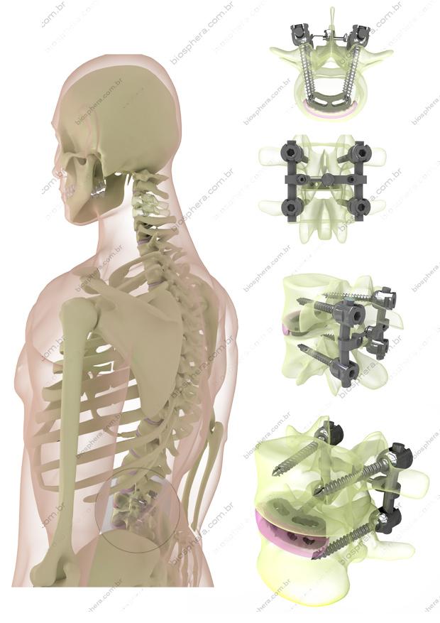 portfolio ortosintese vértebras lombares