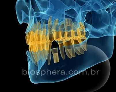 raio x simulado implante dentário
