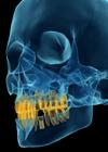simulacao raio x implante dentario