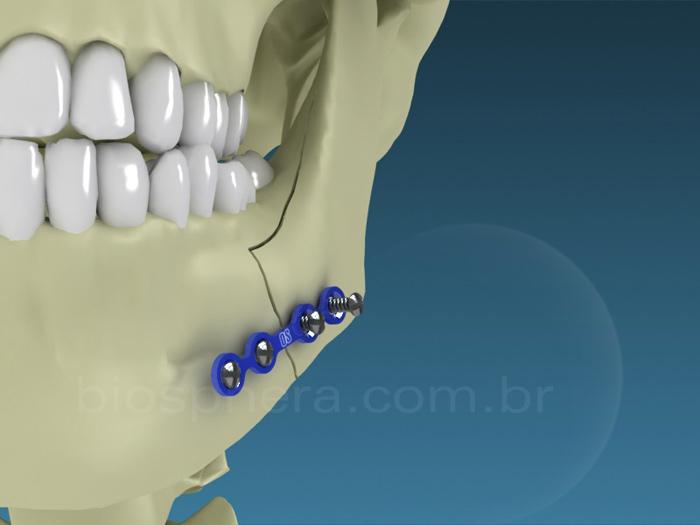 Placas para cirurgia BucoMaxilo Facial - Mandibula