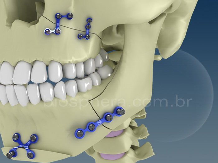 Placas para cirurgia BucoMaxilo Facial - Maxila e mandibula