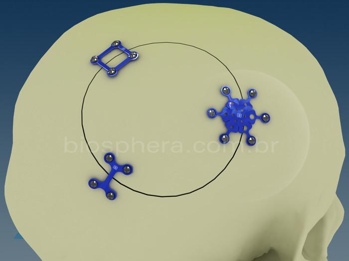 Placas para cirurgia Cranio Facial