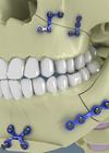 ilustração cirurgia ortognática