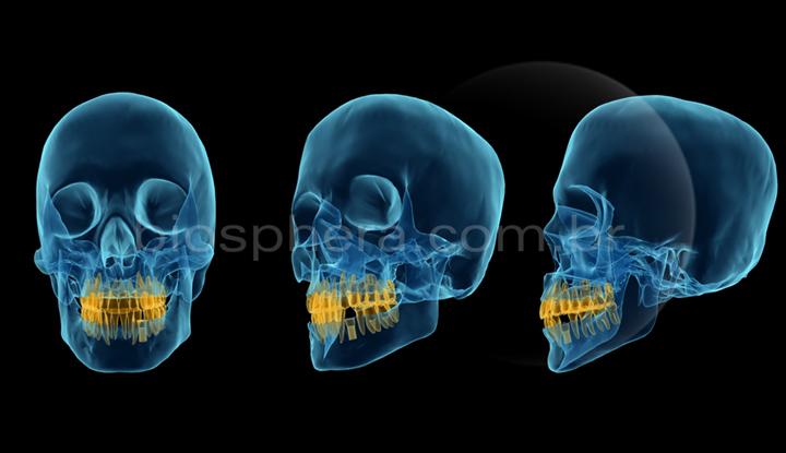 simulação de implante dentário