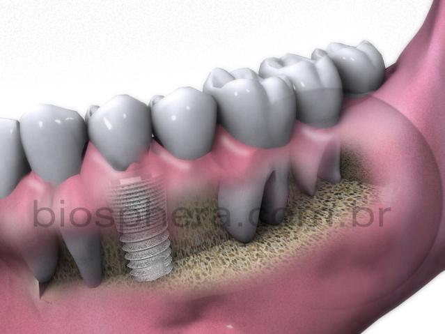 implante de dentes