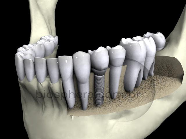 simulaçao 3d implante dentes